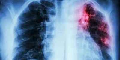 कोविड के दौरान टीबी होने पर क्या है निदान ? जानें … क्या करें क्या न करें